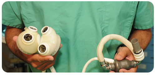 Montefiore Einstein Center for Heart and Vascular Care is trained to implant total artificial hearts.