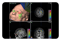 New Stereotactic Radiosurgery Treatment Option for Brain Tumors and Other Conditions